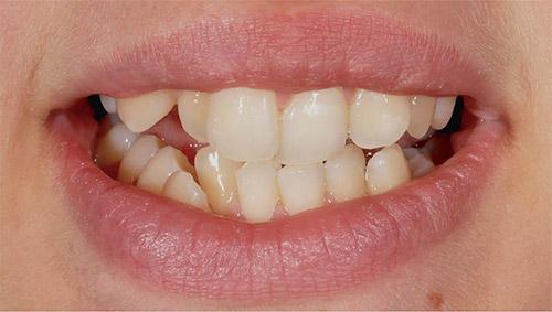 Зубы до ортодонтии