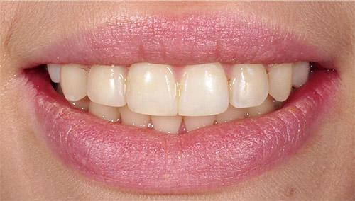 Зубы после ортодонтии